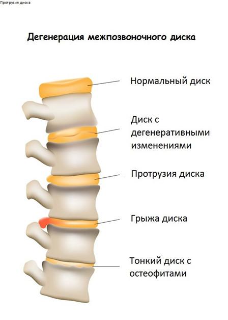 Лечение протрузии дисков позвоночника поясничного отдела