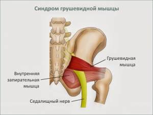 2. Асептический некроз головки бедренной кости