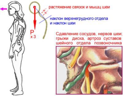 боль в пояснице причины при наклоне подняла тяжелое Факторы, способствующие деятельности: