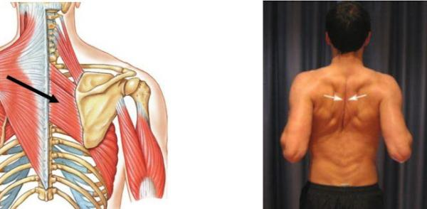 Ромбовидная мышца